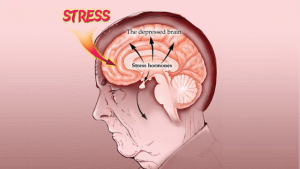 How to Manage Your Stress Hormones